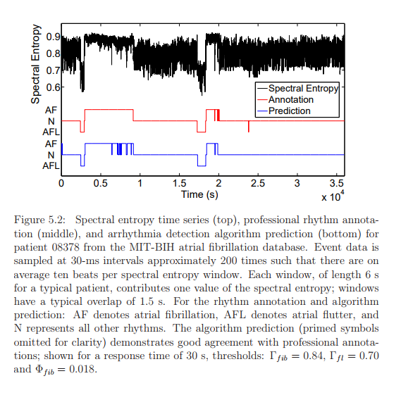 Spectral entropy time series (top), professional rhythm annotation (middle), and arrhythmia detection algorithm prediction (bottom) for patient 08378 from the MIT-BIH atrial fibrillation database. Event data is sampled at 30-ms intervals approximately 200 times such that there are on average ten beats per spectral entropy window. Each window, of length 6 s for a typical patient, contributes one value of the spectral entropy; windows have a typical overlap of 1.5 s. For the rhythm annotation and algorithm prediction: AF denotes atrial fibrillation, AFL denotes atrial flutter, and N represents all other rhythms. The algorithm prediction (primed symbols omitted for clarity) demonstrates good agreement with professional annotations; shown for a response time of 30 s, thresholds: Γf ib = 0.84, Γf l = 0.70 and Φf ib = 0.018.